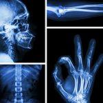 Strukovni razred za zdravstvenu radiološko-tehnološku djelatnost